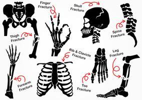 Set Bone Fracture Icon (Becken, Hüfte, Oberschenkel, Hand, Handgelenk, Finger, Schädel, Gesicht, Wirbel, Arm, Ellbogen, Thorax, Fuß, Ferse, Bein) Schwarzweiß-Design (Gesundheitskonzept)