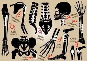 Insamling av ortopedisk kirurgi (intern fixering med plåt och skruv) (skalle, huvud, nacke, ryggrad, sakrum, arm, underarm, hand, armbåge, axel, bäcken, lår, höft, knä, ben, fot) vektor