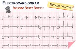 Elektrokardiogramm (EKG, EKG) der Ischämischen Herzkrankheit (Myokardinfarkt) und Anatomie des Herzens-Symbol vektor