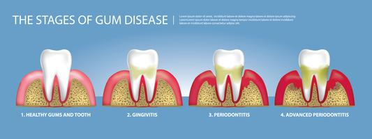 Mänskliga tänder Stages of Gum Disease Vector Illustration