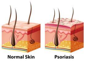 Diagramm der menschlichen Haut mit Normal- und Psoriasis