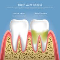 Menschliche Zähne Stadien der Zahnfleischerkrankungs-Vektor-Illustration