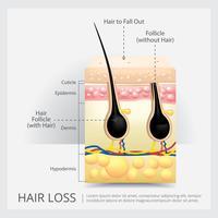 Eingewachsene Haarstruktur-Vektor-Illustration