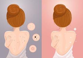 Före och efter kvinna med akne och utan akne på ryggen