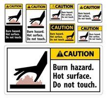 brännskada, vidrör inte skyltuppsättningen