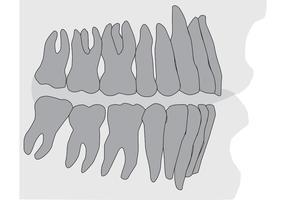 Zähne und Zahnfleisch