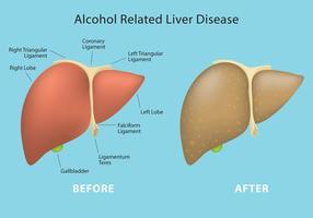 Alkohol verwandte Lebererkrankung Vektor Info