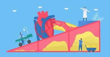 Atherosklerose-Konzept mit Ärzten, die die Arterie reparieren vektor