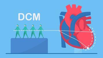 dilaterat kardiomyopati-koncept med förstorad vänster kammare
