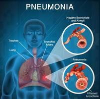 affischdesign för lunginflammation