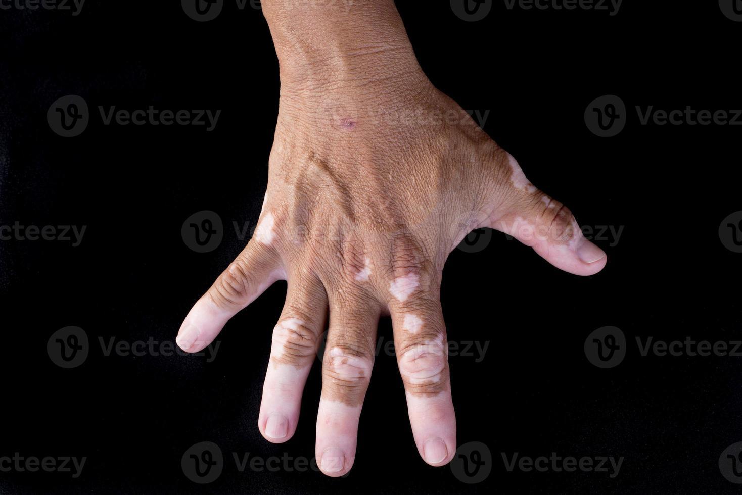 vitiligo quadrichrome photo