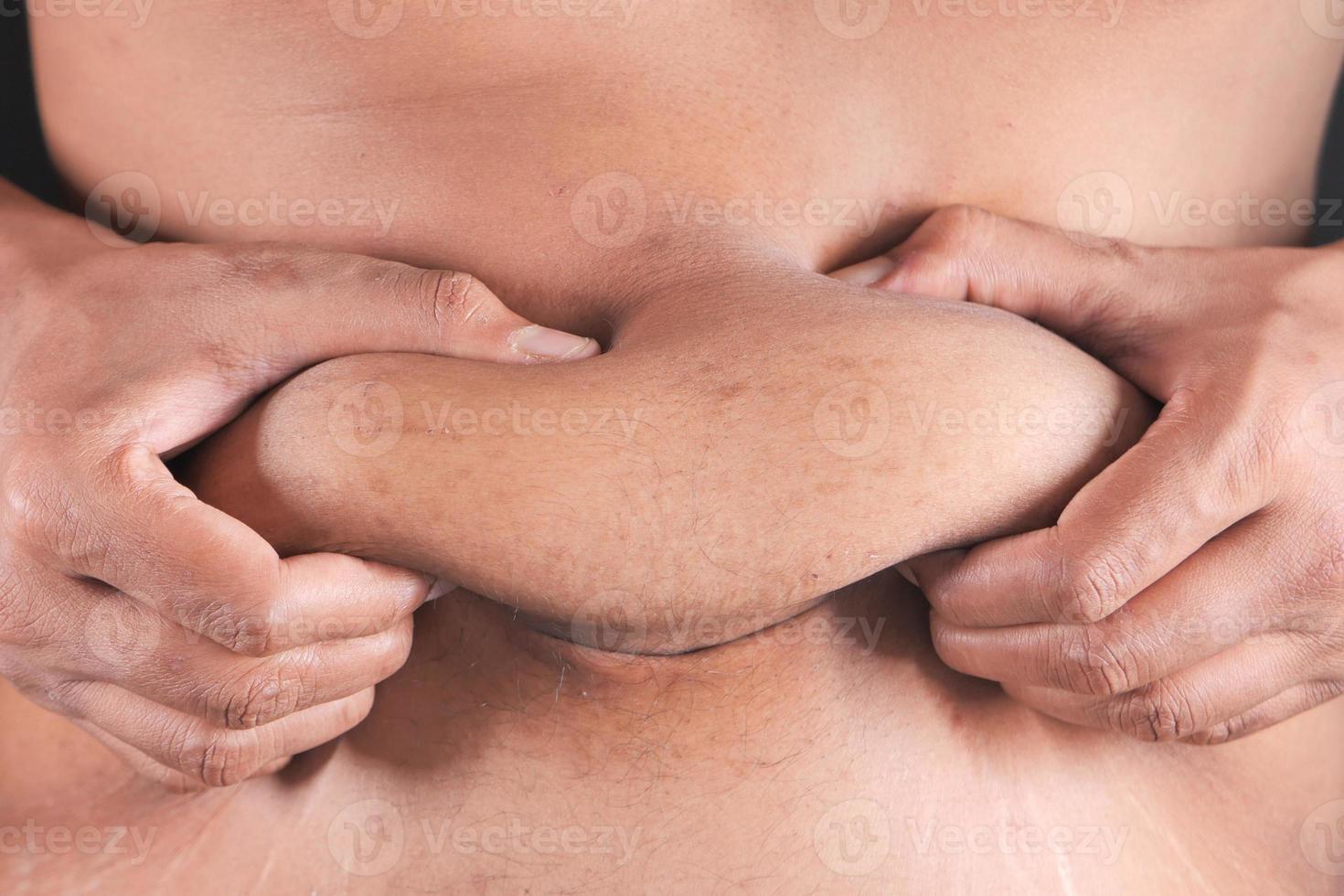 gros plan, de, personne, tenue, excès de graisse, estomac photo