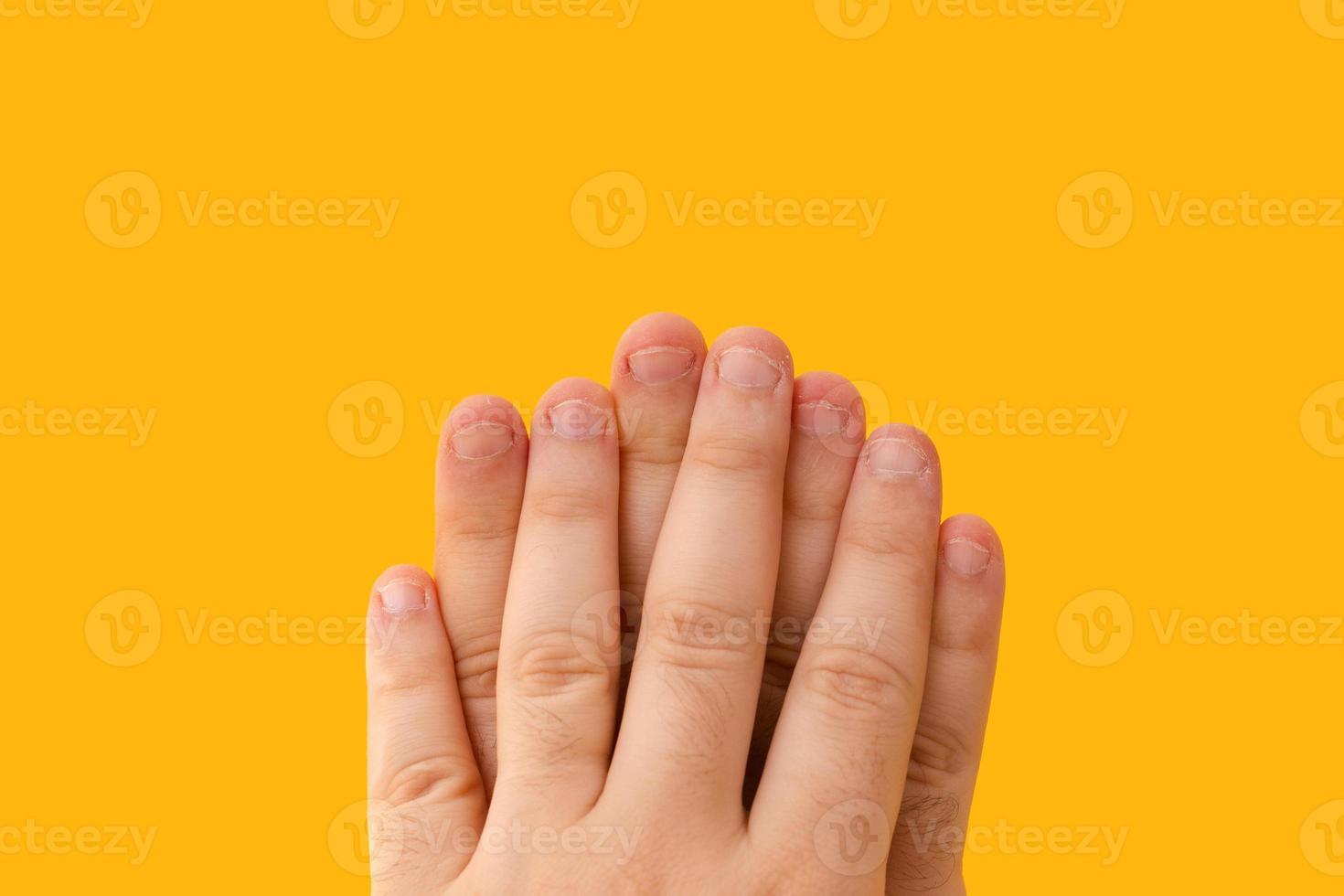 doigts avec des ongles mordus isolés sur fond jaune photo