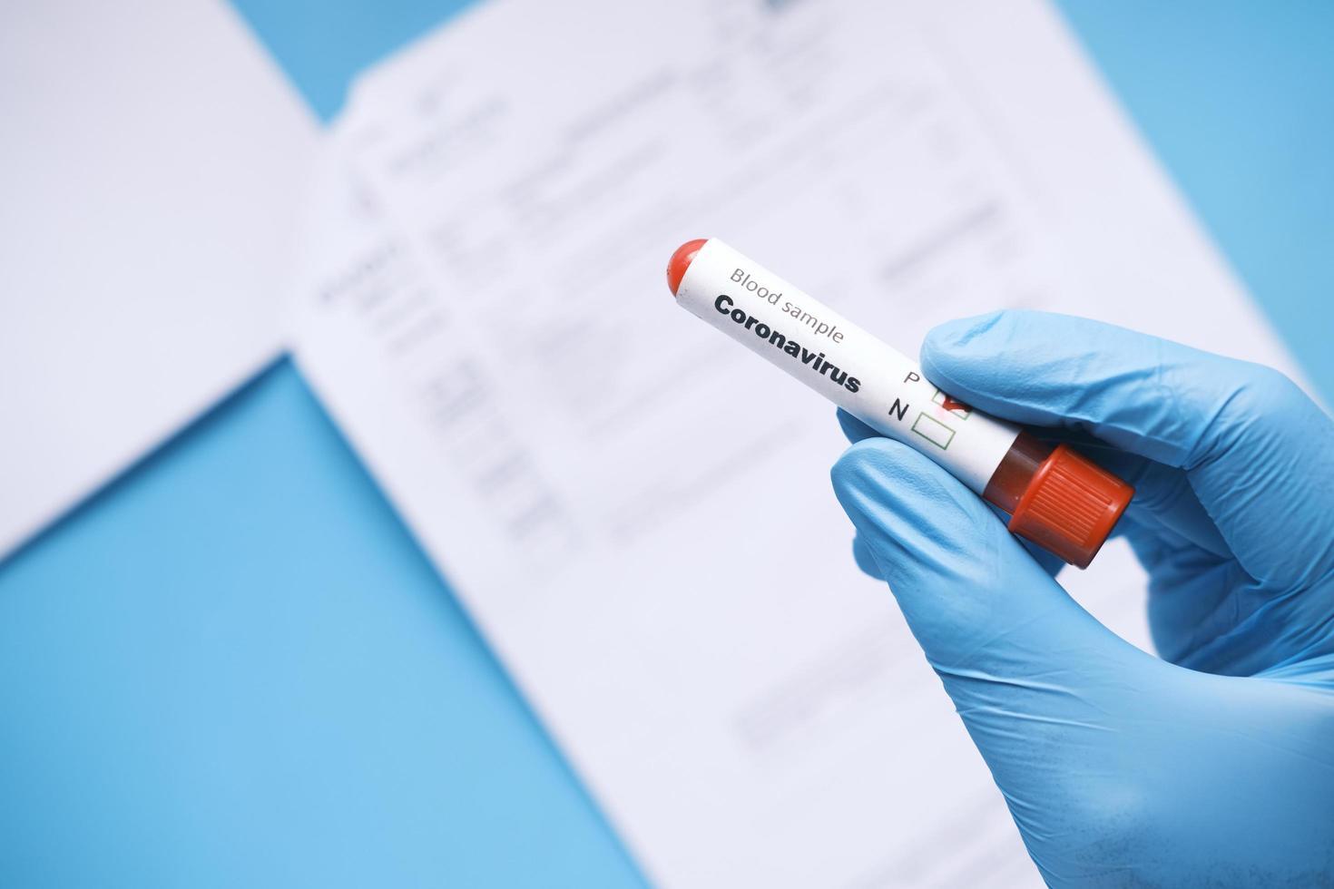 main dans des gants médicaux bleus tenant un tube à essai sanguin et un rapport médical sur la table photo