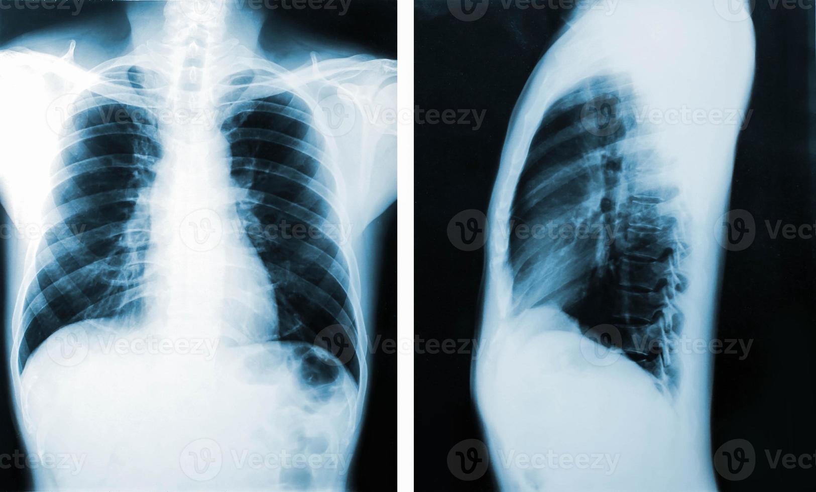 image radiographique, vue des hommes de la poitrine pour un diagnostic médical. photo