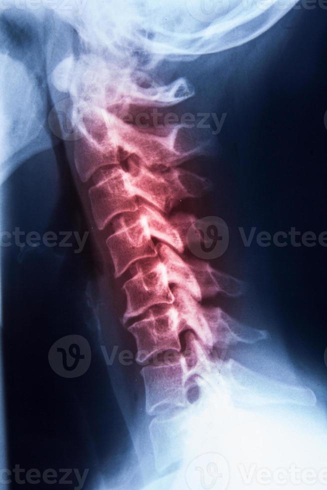 IRM des rayons X du col de la colonne vertébrale et du stress de la tête photo