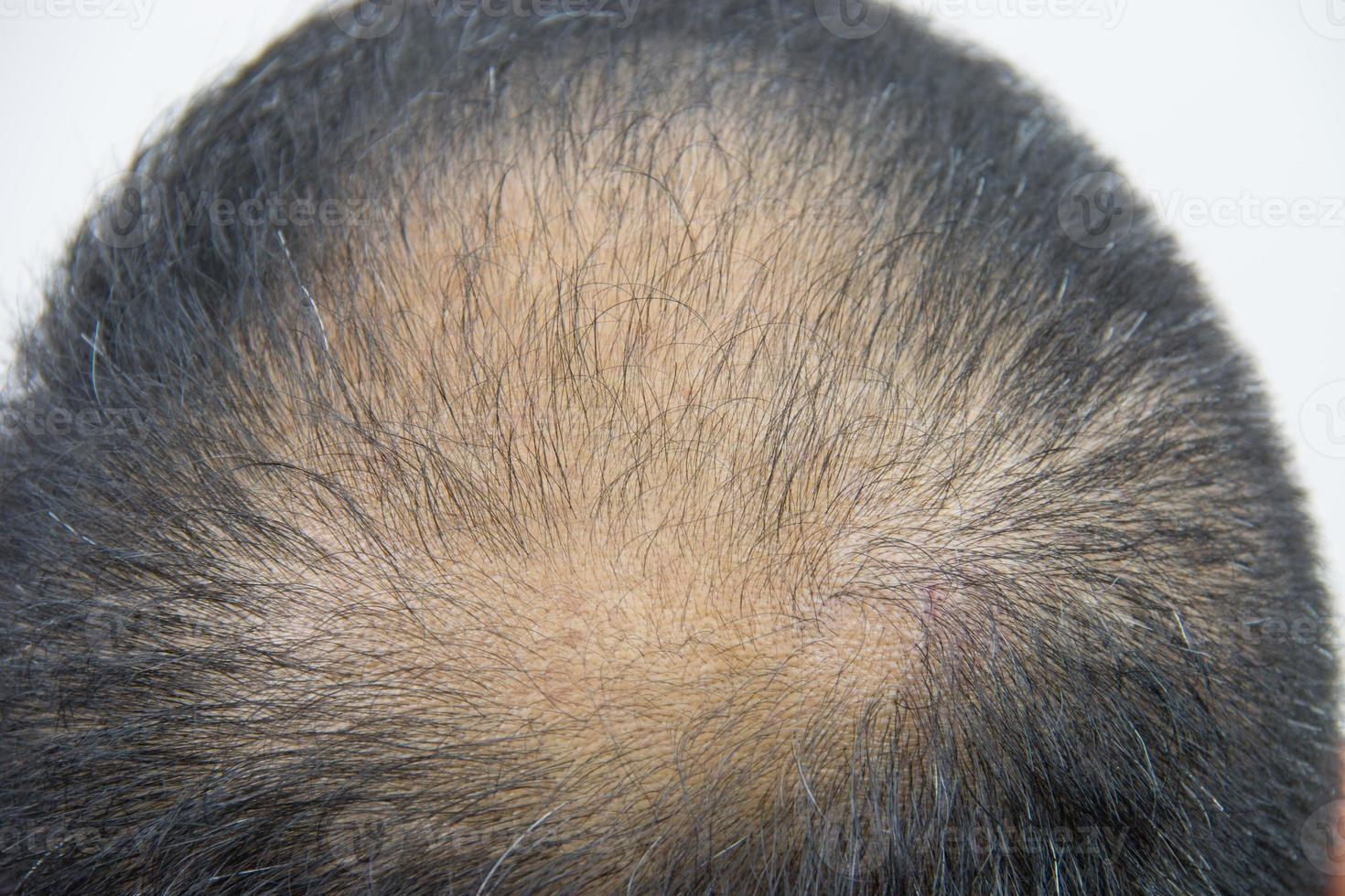 perte de cheveux en gros plan photo