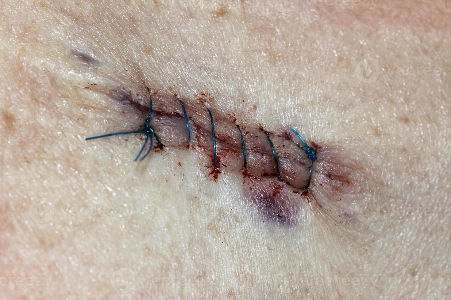points de suture - procédure médicale photo