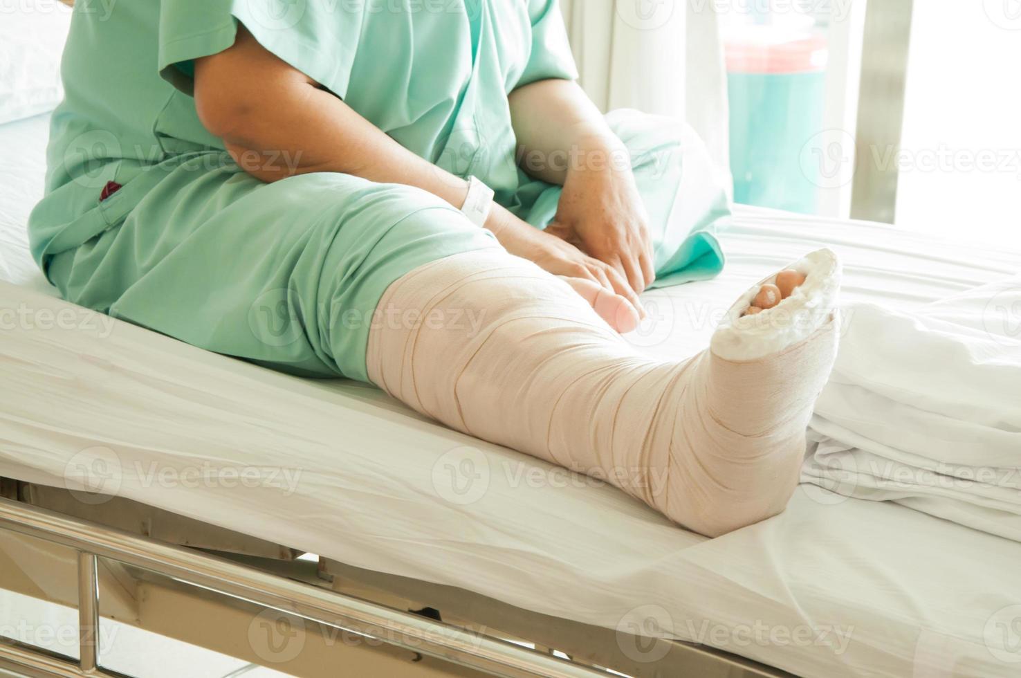 jambe cassée photo