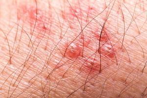 gros plan extrême d'un bras poilu qui a une éruption de bardeaux rouges photo