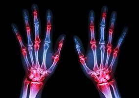 Film x ray à la fois les mains de l'homme et l'arthrite au rhumatoïde de goutte articulaire multiple photo