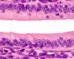 épithélium de l'intestin grêle photo