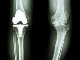 genou de radiographie de film de patient de genou d'arthrose et d'articulation artificielle photo