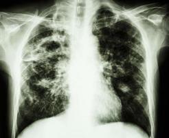 radiographie pulmonaire sur film montre une cavité au niveau du poumon droit fibrose infiltrat interstitiel irrégulier au niveau des deux poumons en raison d'une infection à mycobacterium tuberculosis tuberculose pulmonaire photo