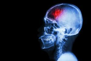 accident vasculaire cérébral accident vasculaire cérébral film xray crâne latéral avec accident vasculaire cérébral et zone vide sur le côté gauche photo