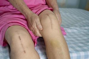 Asiatique senior ou vieille dame vieille femme patiente montrer ses cicatrices arthroplastie totale du genou chirurgicale photo