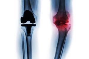 film radiographique d'un patient arthrosique du genou et d'une arthroplastie totale du genou. fond isolé. photo