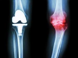 film radiographique du genou du patient arthrosique du genou et de l'articulation artificielle photo