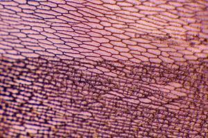 épiderme d'oignon à grandes cellules pigmentées photo
