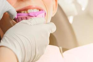 enregistrement d'empreintes et de morsures chez un jeune adolescent. diagnostics dentaires modernes fonctionnels. photo