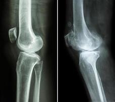 genou normal et arthrose genou photo