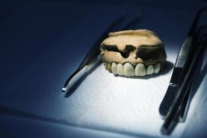 Plaque dentaire en porcelaine de zirconium dans un magasin de dentiste photo