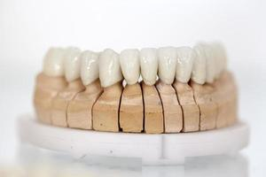 plaque dentaire en porcelaine de zirconium photo
