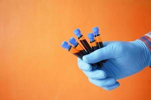 main dans des gants médicaux bleus tenant un tube à essai sanguin photo