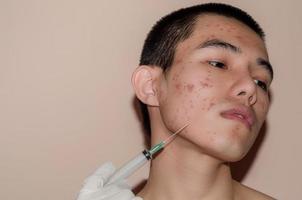 les cicatrices et les rides causées par l'acné sur la peau par les hormones ou la crasse. photo
