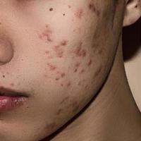 gros plan d'acné sur la peau, acné sur le visage causée par une hormone. photo
