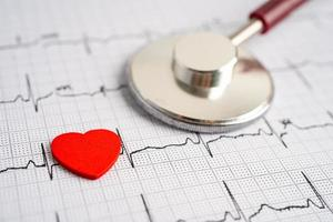 stéthoscope sur électrocardiogramme avec coeur rouge, onde cardiaque, crise cardiaque, rapport de cardiogramme. photo
