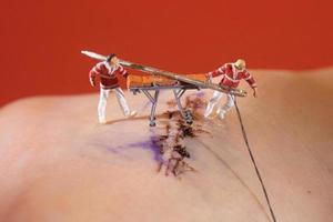 points de suture étant des poignées par des figurines miniatures à l'échelle ho photo