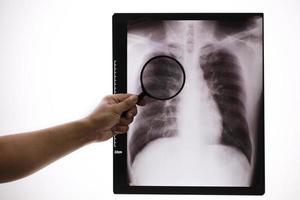 Docteur zoom x-ray ,médecin vérifiant le film radiographique thoracique à la salle d'hôpital photo