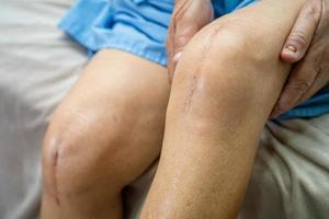 une patiente asiatique âgée montre ses cicatrices chirurgical remplacement total de l'articulation du genou suture chirurgie arthroplastie sur lit dans la salle d'hôpital de soins infirmiers, concept médical solide et sain. photo