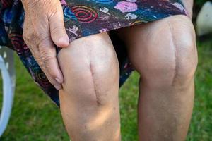 Dame âgée asiatique vieille femme patiente montre ses cicatrices arthroplastie totale du genou chirurgicale. photo