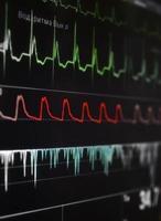 cardiomonitor avec un éclatant fragment de vagues. photo