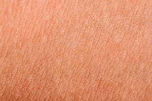 peau humaine se bouchent photo