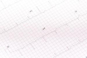 gros plan d'électrocardiogramme photo