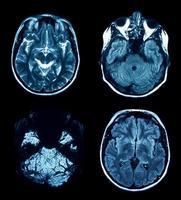 scan IRM photo