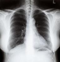 image aux rayons x de la poitrine des femmes photo